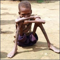 third-world-starvation